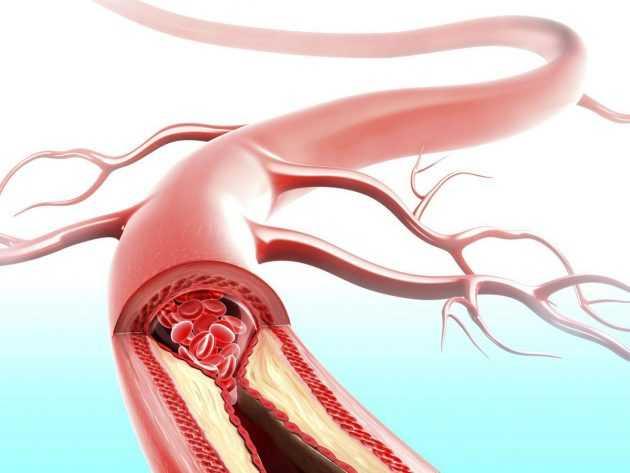 Атеросклероз сосудов головного мозга  симптомы лечение