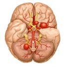 ангиома головного мозга