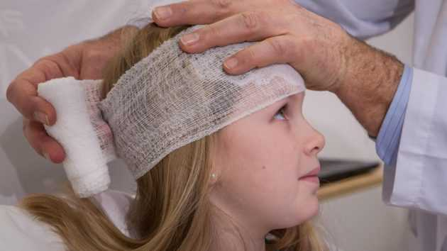 последствия сотрясения головного мозга