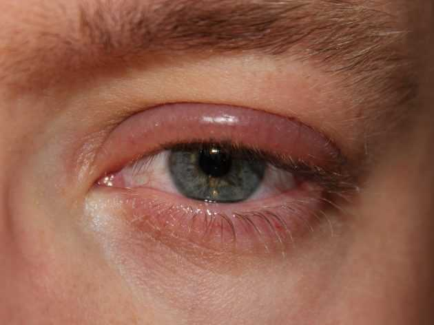 глаз опух и болит